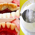 Easy Steps and Inexpensive Treatment To Get Rid of Terrible Tartar, Bad Breath and Plaque
