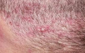 Small Red Itchy Bumps On Back Scalp Treatment