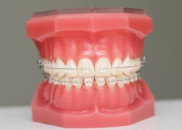 سلك الأسنان