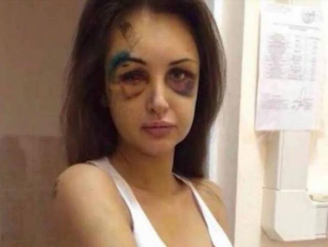 لن تصدق ماذا فعلت فتاة بصديقها بعد تعرضها للضرب وحبسها في الحمام! الغريب هو ما قامت به بعد ان تعافت!