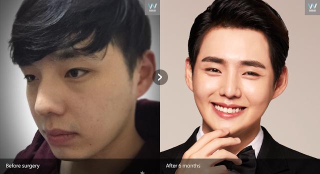 men plastic surgery