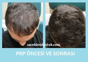 prp saç tedavisi yaptıranlar 15