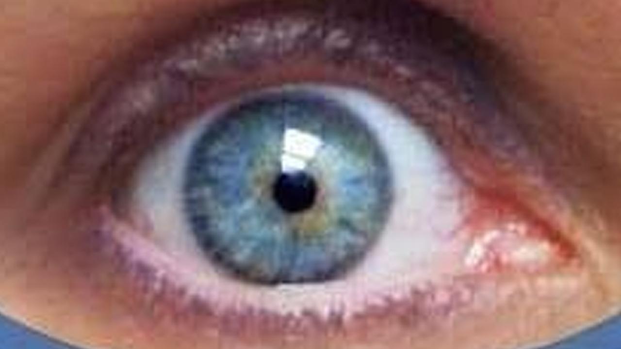 Sob o olhar azul