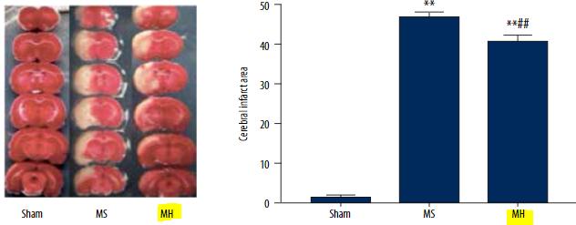 図:脳卒中後の高タンパク質食の効果