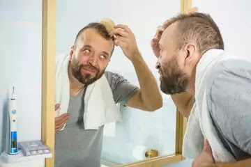 What Causes Receding Hairline? | How to Stop a Receding Hairline?