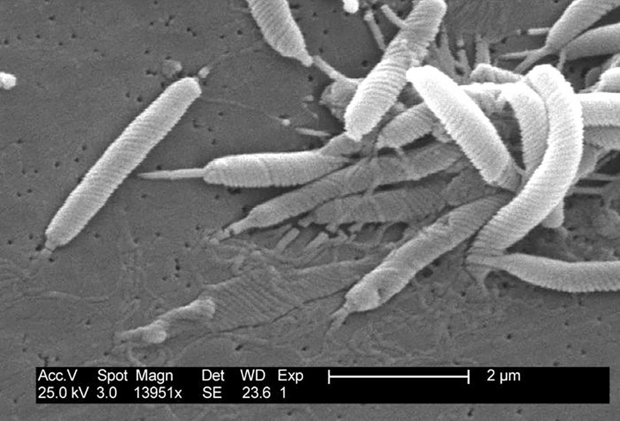 Helikobakteri Nedir Nasıl Bulaşır Yok Edilir