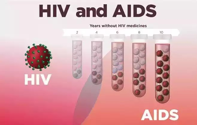 What is AIDS ? Important facts about AIDS.
