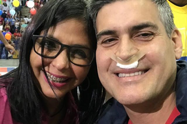 Roberto Messuti se operó la nariz y las lolas