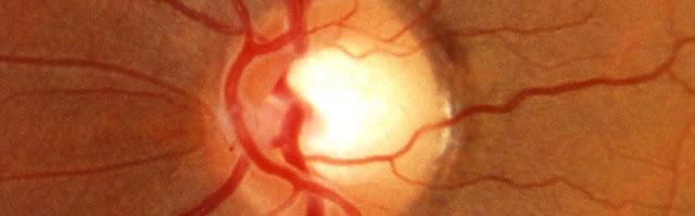 optic disc damage in glaucoma