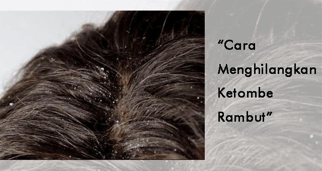 cara mudah untuk menghilangkan ketombe yang parah pada rambut