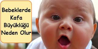bebeklerde kafa büyüklüğü neden olur
