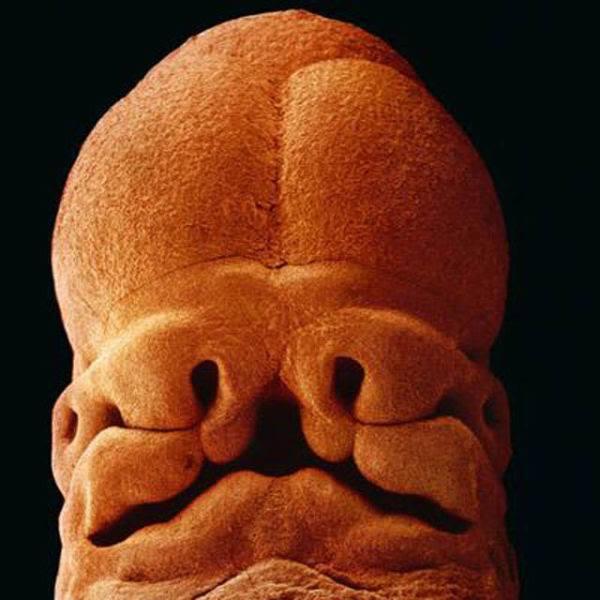 بعد 5 أسابيع، هنا يمكن تمييز حفر الوجه (الأنف والعيون، إلخ)