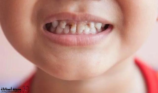 مراحل تسوس الأسنان معلومات عامة.