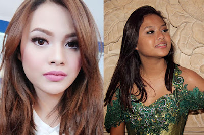 artis yg oplas di korea artis yang oplas indonesia artis bunga zainal oplas artis operasi plastik 1 milyar aurel