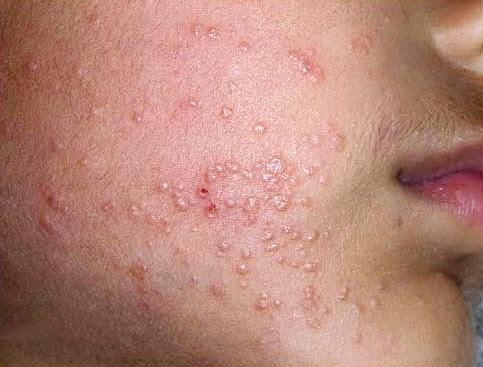Types of Skin Diseases: Types of Skin Diseases