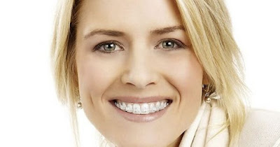 Thời gian niềng răng móm là bao lâu?