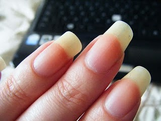 Best options to remove yellow stain from finger nails