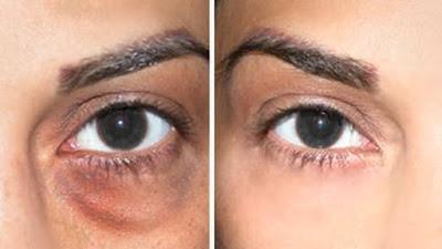 Remove dark circles naturally in 3 days