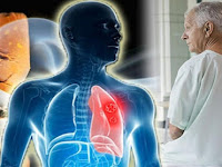Alternative Treatment For Lung Cancer Stage 4
