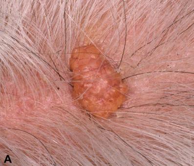 头皮的皮脂腺瘤