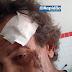 Homem é espancado com chutes e socos em Tobias Barreto