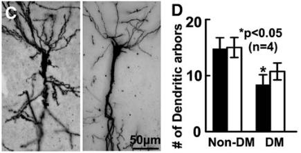 図:糖尿病の神経樹状突起