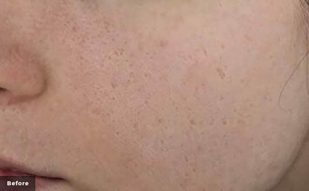 picoQ皮秒雷射-毛孔痘疤粉刺治療