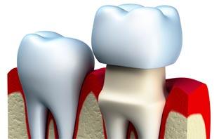 مضاعفات يمكن ان تحدث بعد تلبيس الاسنان