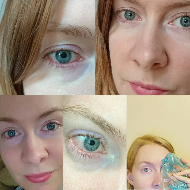 La rosacée oculaire : Signes précurseurs et traitements