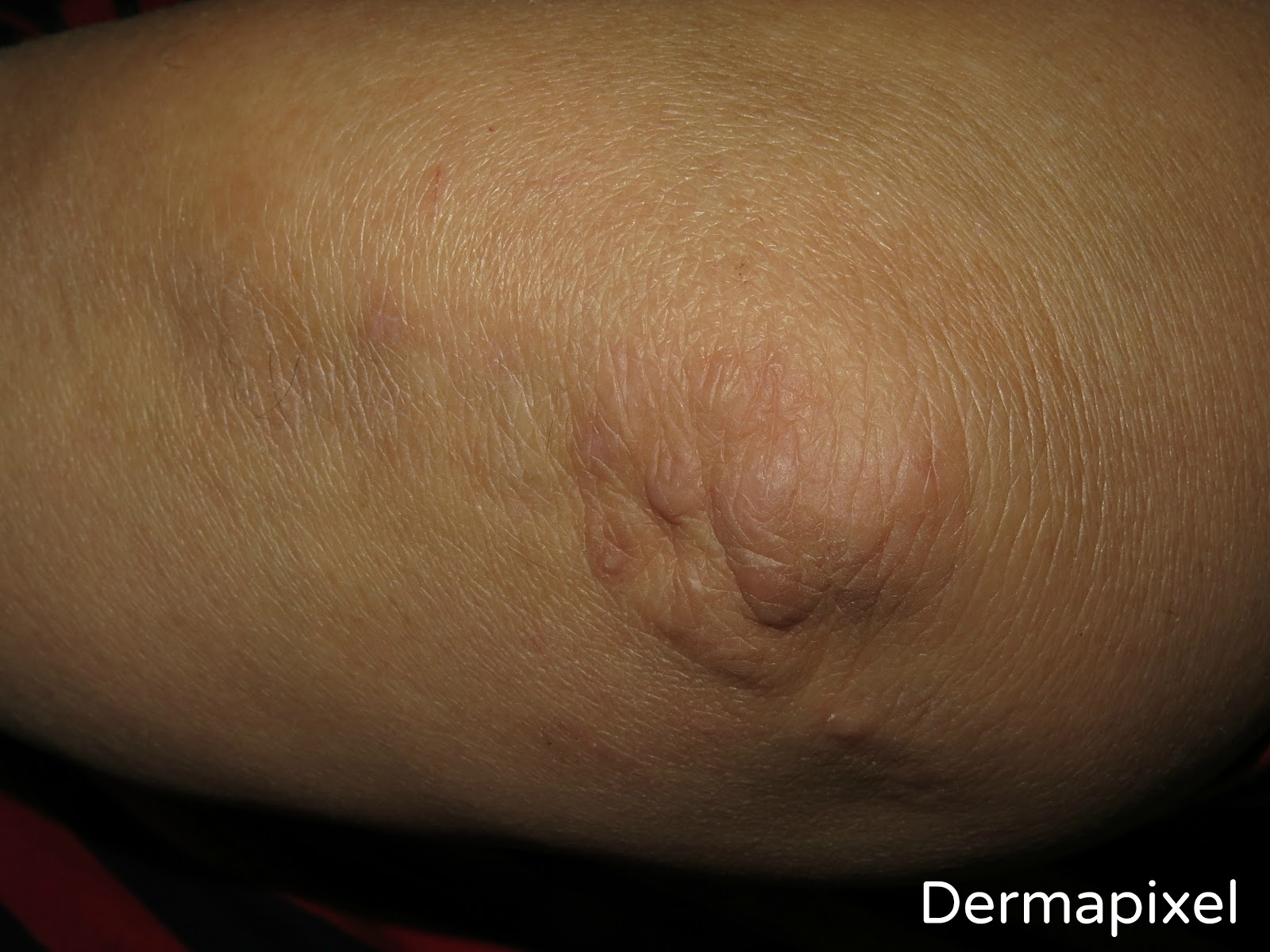 granuloma anular intersticial y diabetes