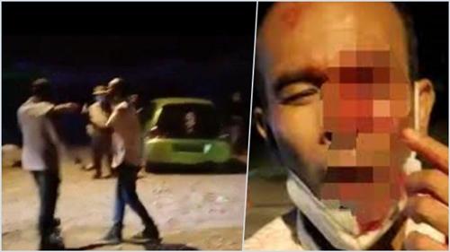 Polisi Buru Penyebar Video Hoaks Mantan Anggota DPRD Ditusuk Matanya hingga Buta, Pelakunya Diancam 6 Tahun Penjara