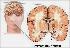 What Is Brain Tumour