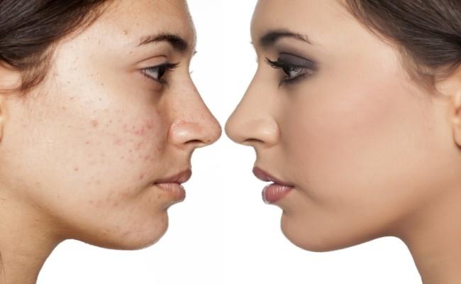 علاج وإزالة البثور والبقع السوداء من الوجه
