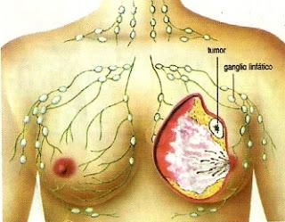 Cáncer de mama (Dibujo indicando el tumor maligno)