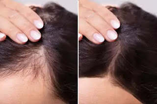 iron deficiency hair loss