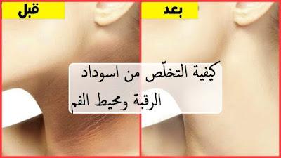 كيفية التخلّص من اسوداد الرقبة ومحيط الفم