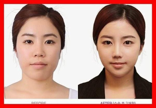 South Korea Plastic Surgery Funnymadworld