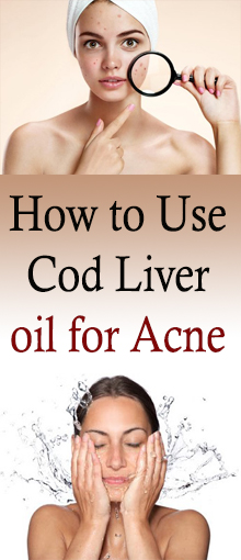 Step by step instructions to Use Cod Liver Oil for Acne #healthnaturalremedies