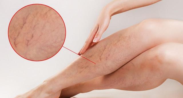 Giãn tĩnh mạch ở chân