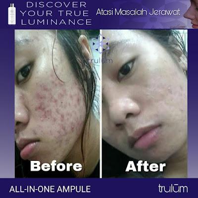 Jual Obat Penghilang Kantung Mata Trulum Skincare Pendalian Iv Koto Rokan Hulu