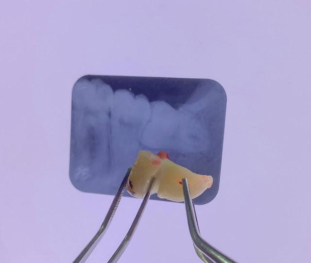 pencabutan-gigi-bungsu-di-jsmile-dental