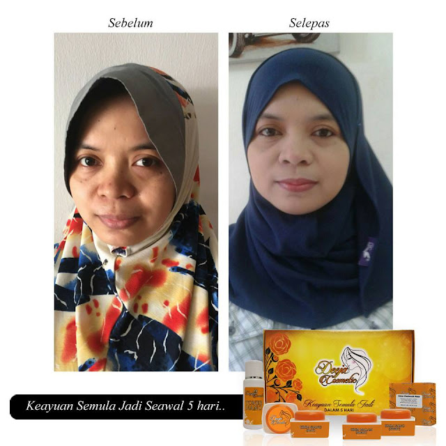Testimoni Lain dari Pengguna Deeja Cosmetic
