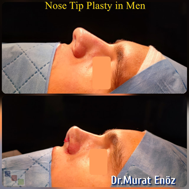Male Nose Tip Plasty Surgery in Turkey,Nose Tip Reshaping For Men,Nose Tip Surgery For Men,Male Nose Tip Plasty Operation in Istanbul,Men's Nose Tip Plasty,