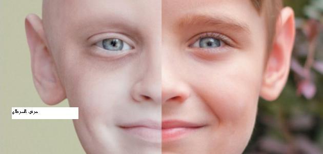 مرض السرطان . اسباب السرطان .علاج السرطان . السرطان مرض العصر .