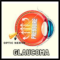 Glaucoma eye , Increased intraocular pressure, Optic nerve damaged , Glaucoma condition