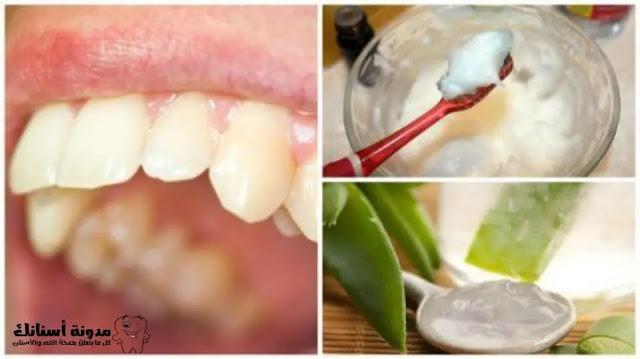 6 وصفات منزلية تساعدك في علاج تسوس الأسنان .