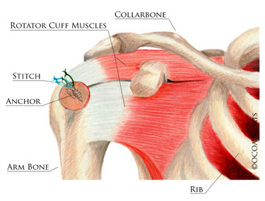 rotator cuff repair The rotator cuff is a group of four muscles that stabilize the shoulder when you injure these muscles, exercising it is the best way to recover here are five.
