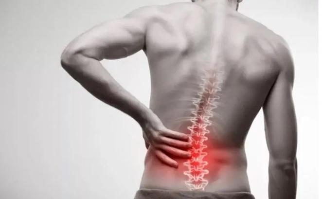 Cómo aliviar el dolor de la ciática