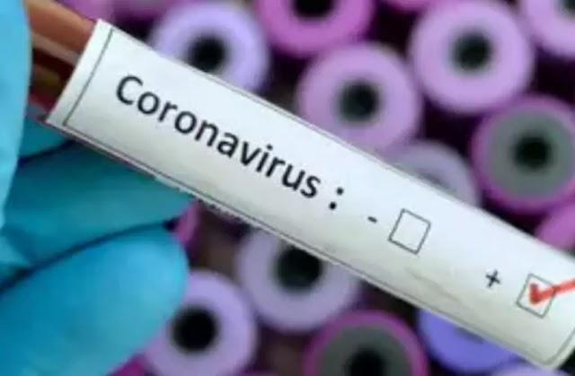 COVID-19 UPDATE: समस्तीपुर में 24 वर्षीय महिला समेत 10 नये कोरोना पॉजिटिव मरीज की पुष्टि