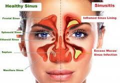 Cara Menyembuhkan Sinusitis Kronis Tanpa Operasi